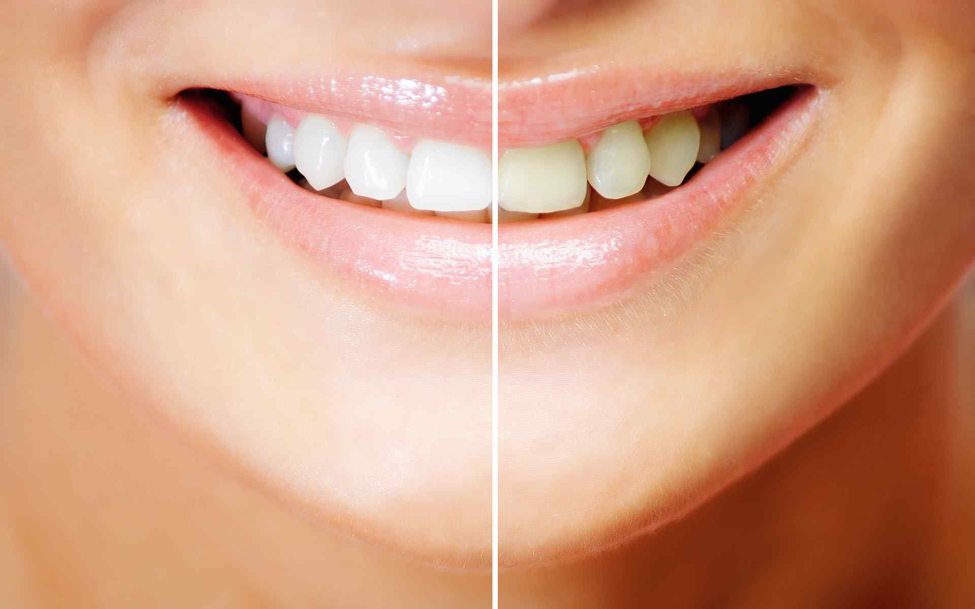 How whitening strips can damage your teeth